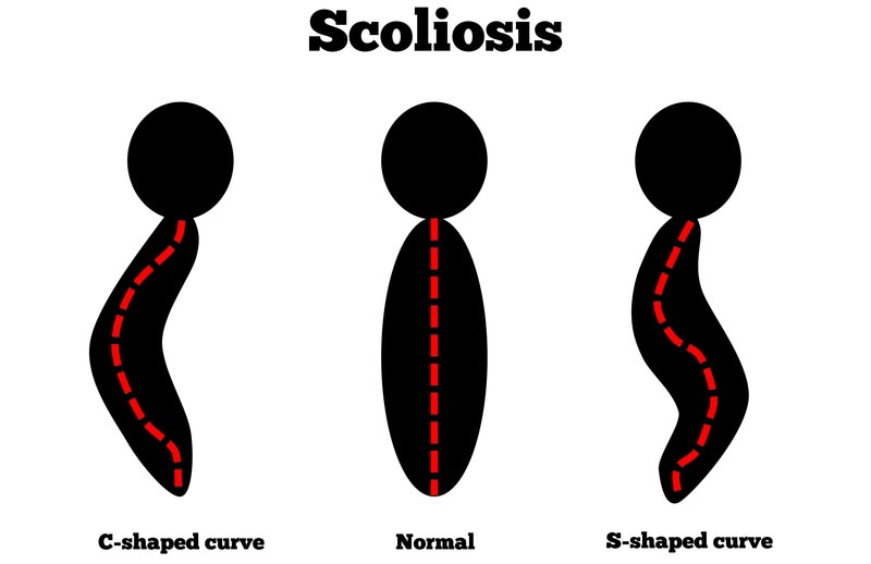 Chiropractic Beneficial for Scoliosis