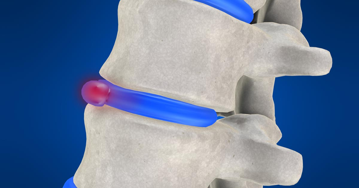 Jacksonville, FL non-surgical disc herniation treatment